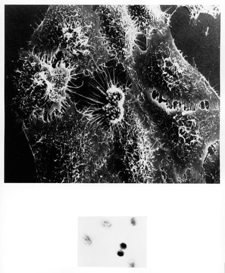 HeLa cells infected with adenovirus. Inset--HeLa cells in the process of dividing.